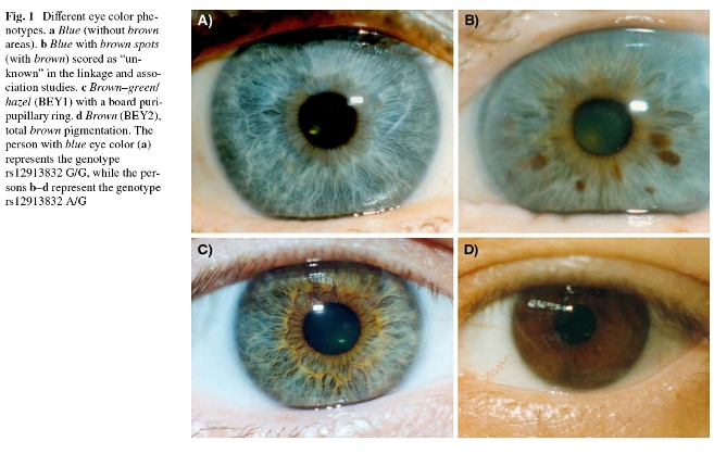 Black Eye Iris Color Eye color phenotypes (from