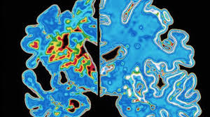More misery for the amyloid hypothesis